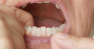 bleeding-gums-when-flossing-what-does-it-mean_cr